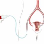 Embolização uterina