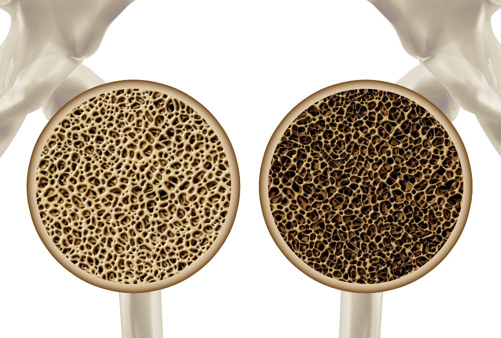 5º episódio da série Dr Claudio Basbaum Responde – Tema: osteoporose